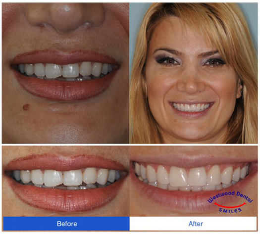 Dental Implant 90024 Westside LA