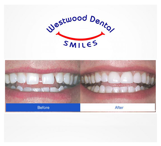 Dental Veneers 90024 Westside LA